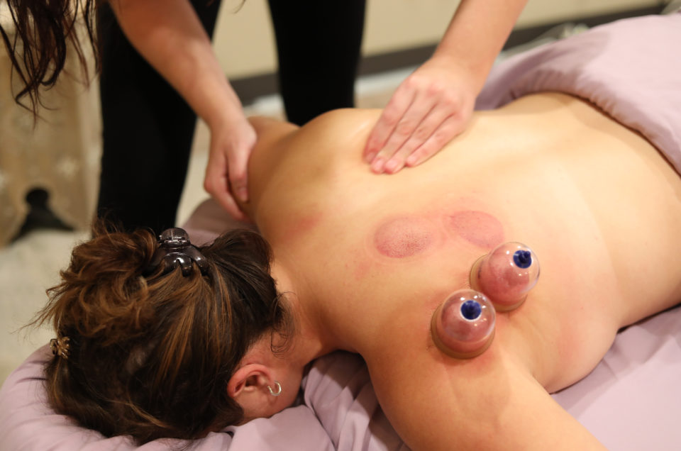 Therapeutic Integration - Cupping Therapy